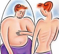 Los trastornos alimentarios son más que bulimia o anorexia