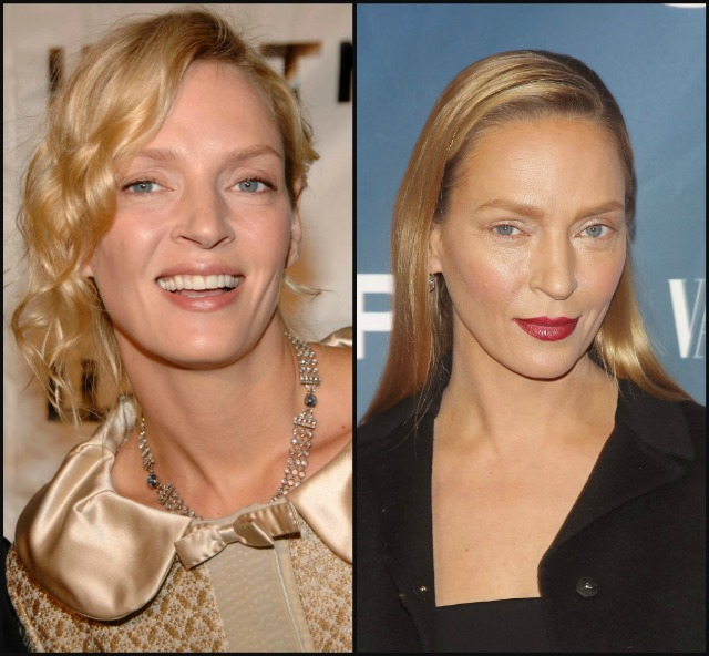 Uma-Thurman-plastic-surgery-rumors